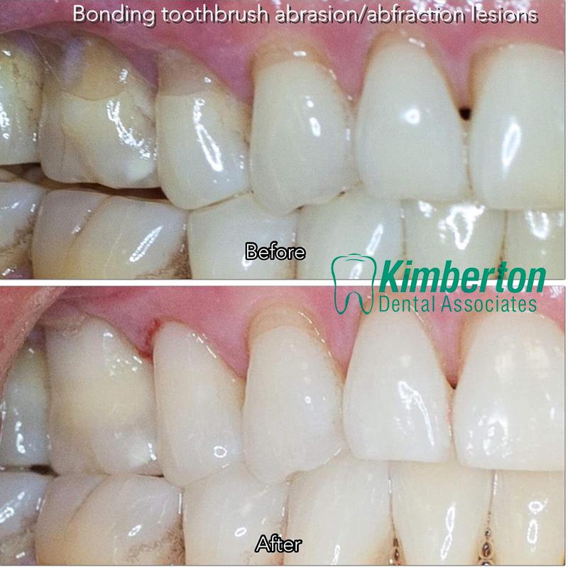 Gallery - Kimberton Dental Associates - Phoenixville/Valley Forge PA ...